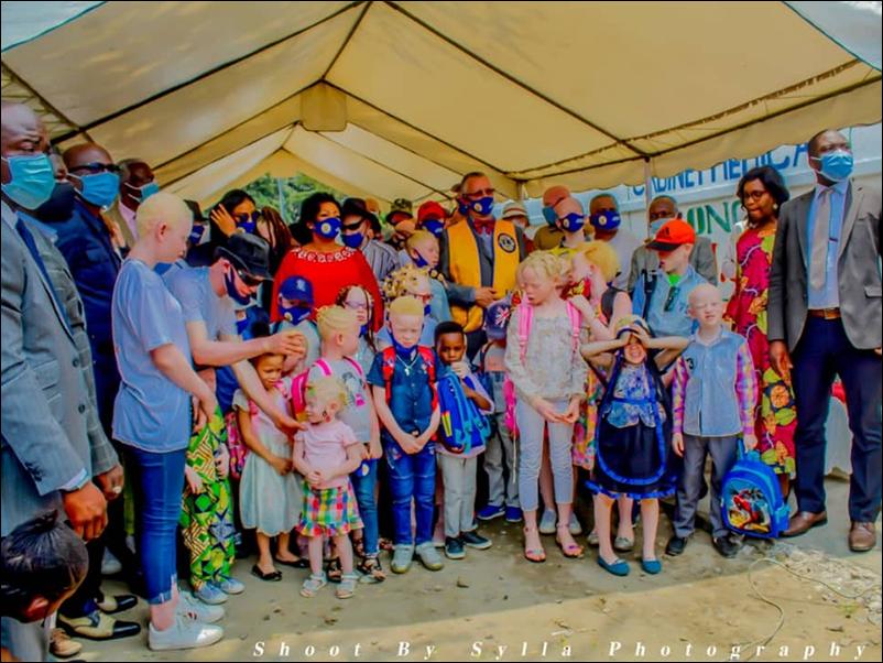 Association Jhony Chancel et amis – Remise de kits scolaires aux enfants atteints d'albinisme